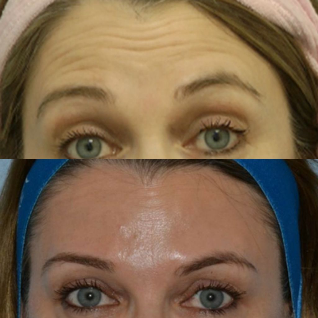 TCC botox before and after