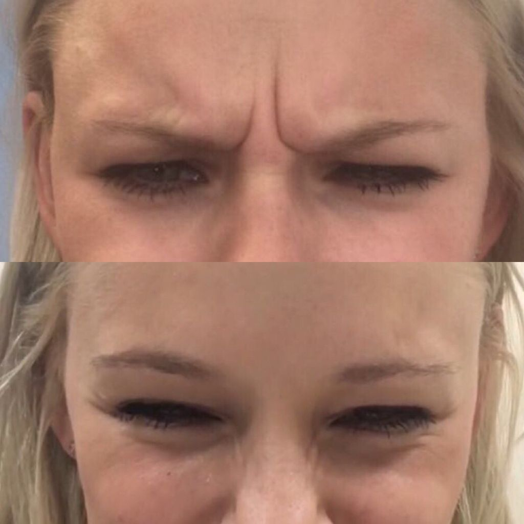 TCC botox before and after (1)