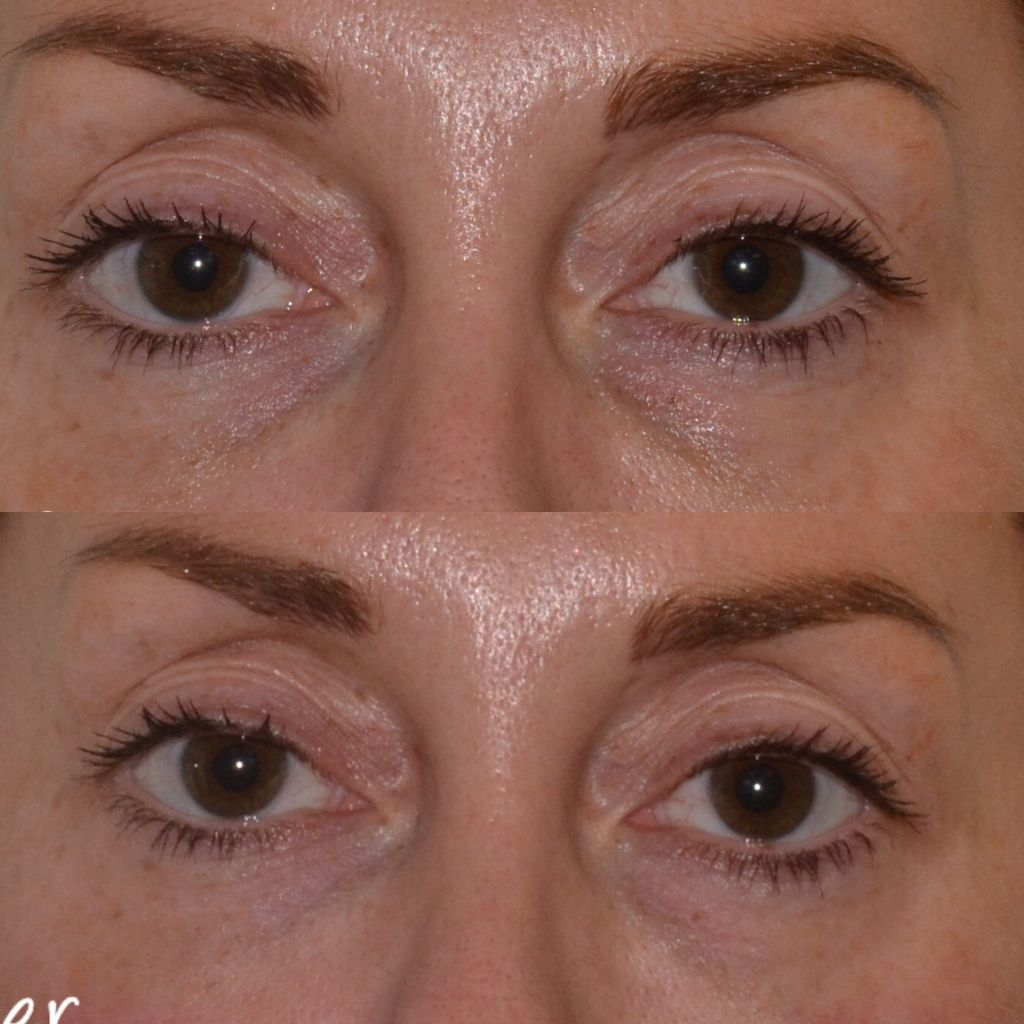 The Cosmetic Centre - Tear Trough Rejuvenation before and after
