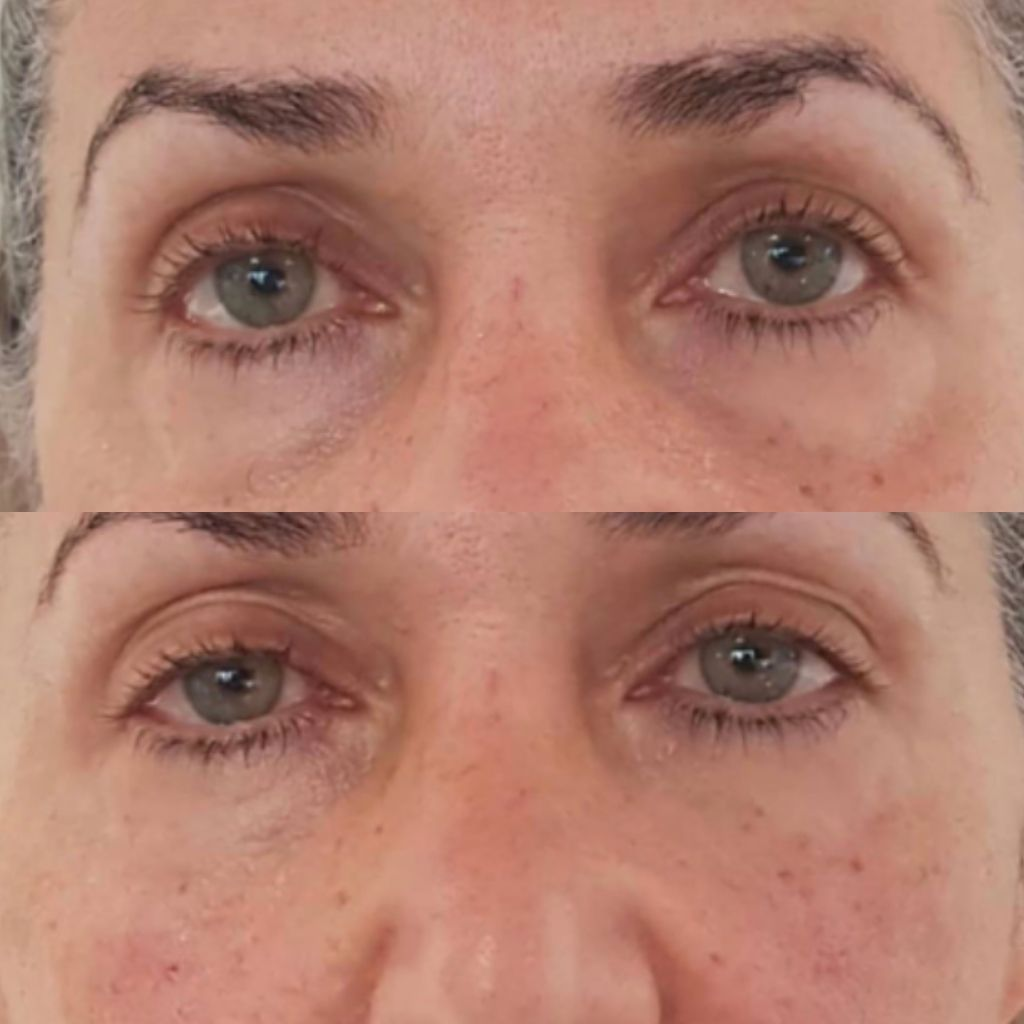 The Cosmetic Centre - Tear Trough Rejuvenation before and after (1)