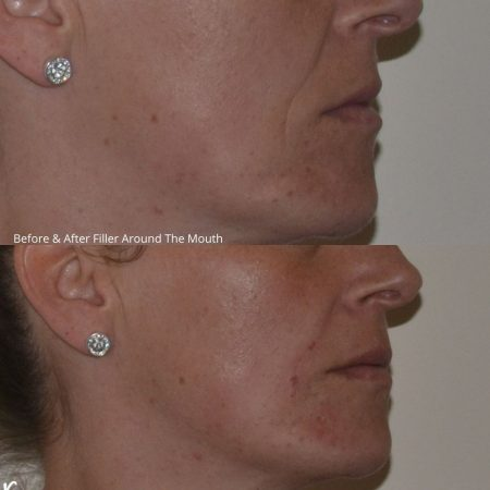 TCC filler before and after