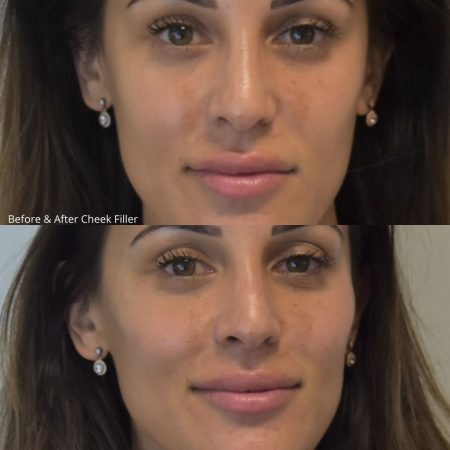 TCC filler before and after (1)
