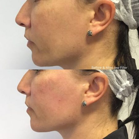 TCC filler before and after (2)