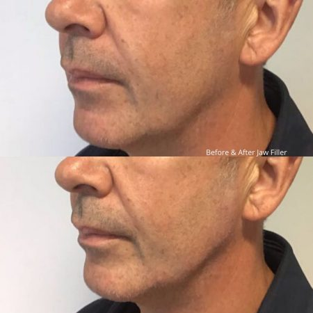 TCC filler before and after (3)