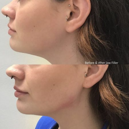 TCC filler before and after (4)
