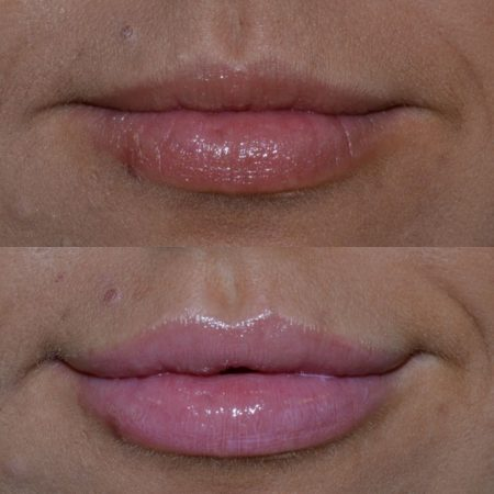 TCC lip filler before and after