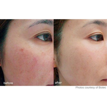 The Cosmetic Centre - IPL - before and after