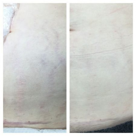 The Cosmetic Centre - collagen pin - before and after