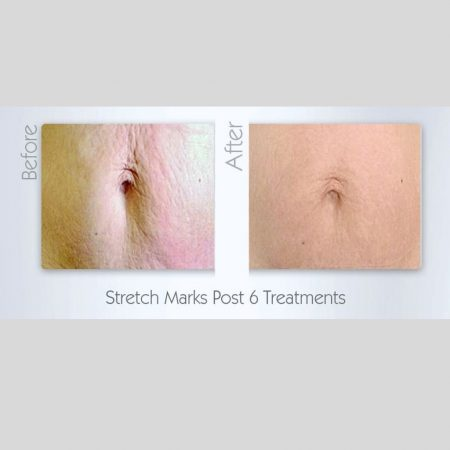 The Cosmetic Centre - collagen pin - before and after (1)