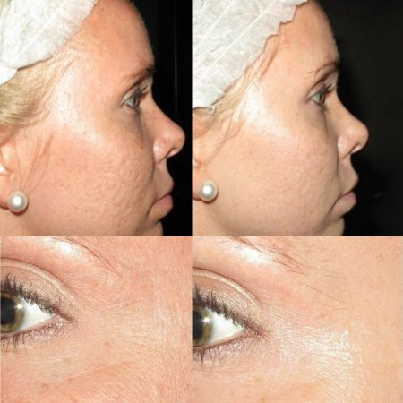 The Cosmetic Centre - collagen pin - before and after (2)