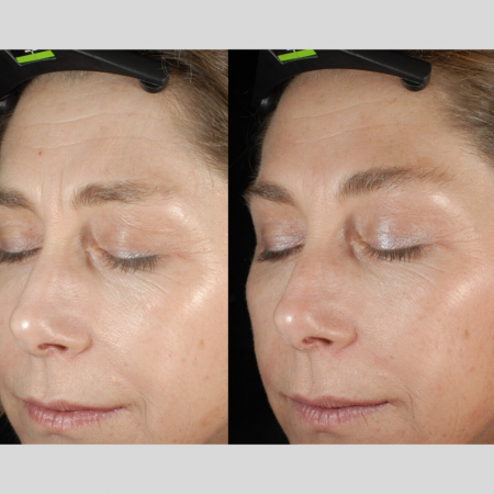 The Cosmetic Centre - epionce peel- before and after