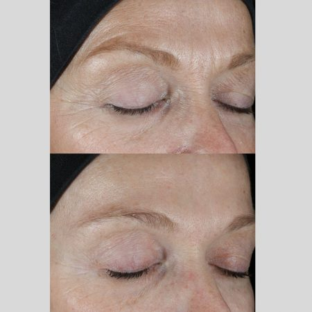 The Cosmetic Centre - epionce peel- before and after (1)