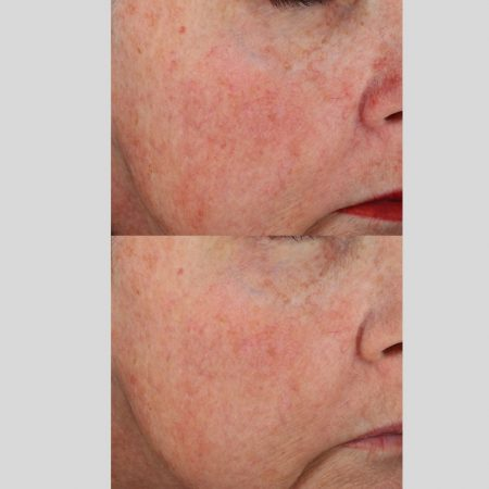 The Cosmetic Centre - epionce peel- before and after (2)