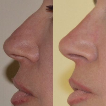 The Cosmetic Centre - non surgical nose job treatment before and after