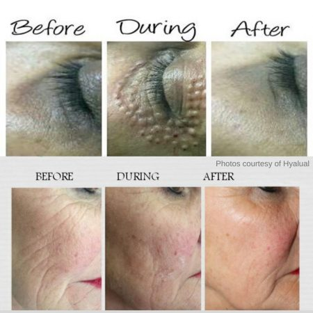 The Cosmetic Centre - rederm - before and after