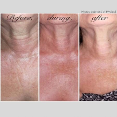 The Cosmetic Centre - rederm - before and after (1)