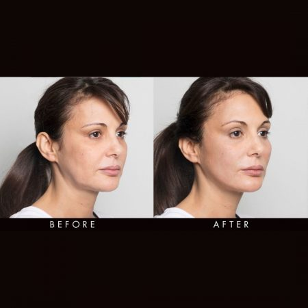 silhouette soft treatment the cosmetic centre (1)