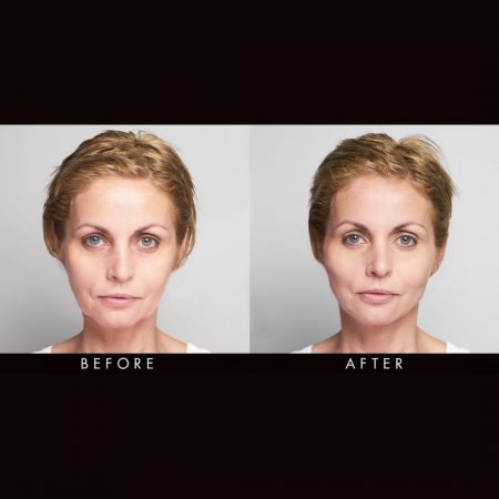 silhouette soft treatment the cosmetic centre